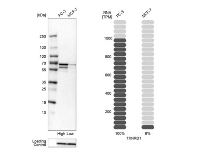 Anti-TXNRD1 Antibody