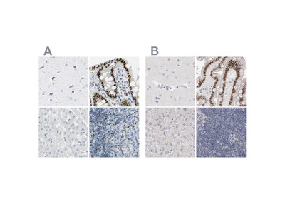 Anti-ZBTB7B Antibody