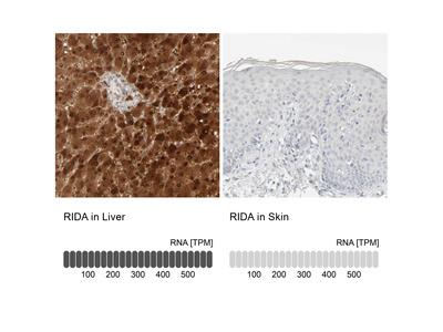 Anti-RIDA Antibody
