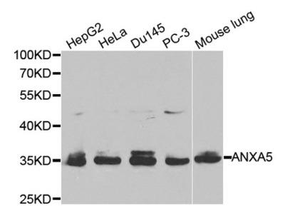 Annexin V (ANXA5) Antibody
