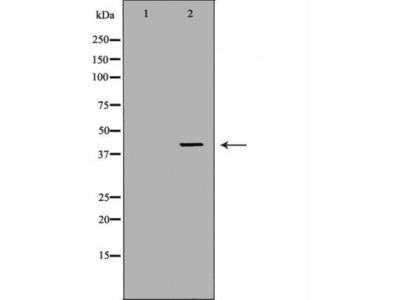 ABO antibody