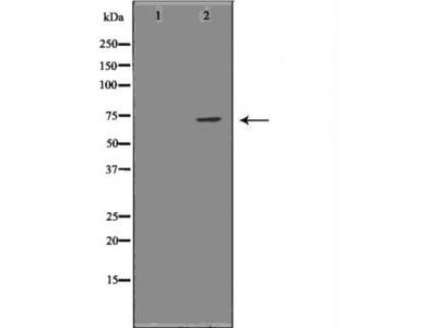 LCP1 antibody