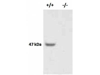 X-linked interleukin-1 receptor antibody