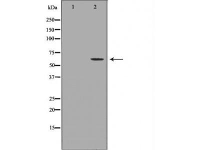 NEFL antibody