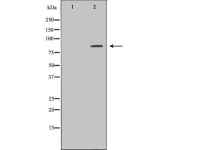 IL6 antibody
