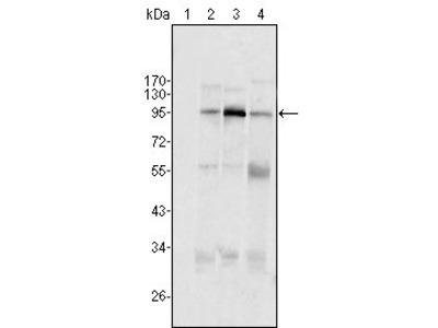 SND1/P100 antibody