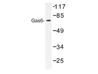 anti GAS6 / AXLLG