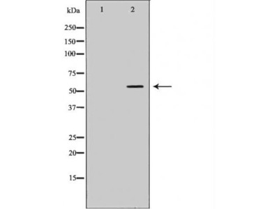 CYP17A1 antibody