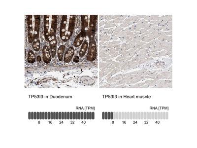 Anti-TP53I3 Antibody