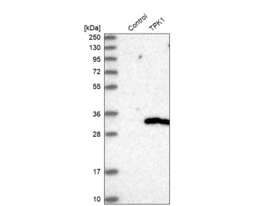 Anti-TPK1 Antibody