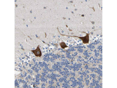 Anti-AIMP2 Antibody