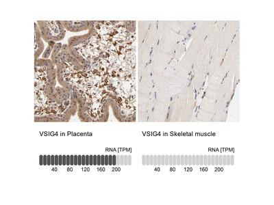 Anti-VSIG4 Antibody