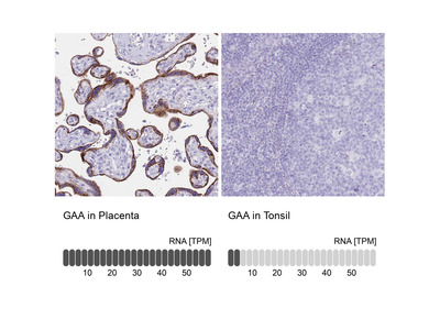 Anti-GAA Antibody