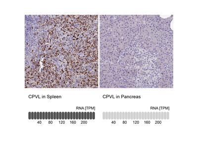 Anti-CPVL Antibody