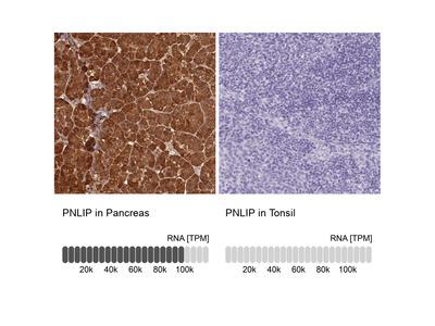 Anti-PNLIP Antibody