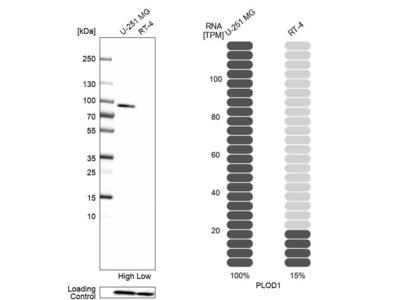 Anti-PLOD1 Antibody