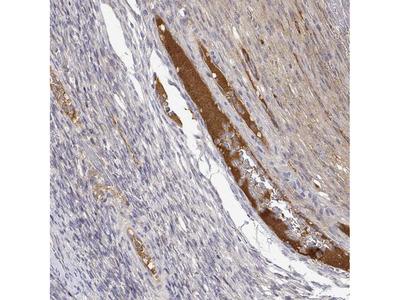 Anti-IGFBP4 Antibody