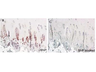 anti Natriuretic peptides B (NT-proBNP 1-21)