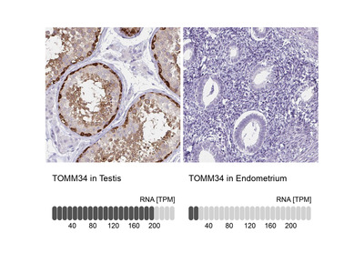 Anti-TOMM34 Antibody