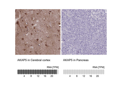 Anti-AKAP5 Antibody