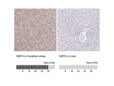 Anti-NEFH Antibody