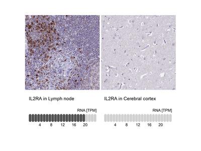 Anti-IL2RA Antibody