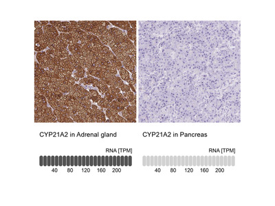 Anti-CYP21A2 Antibody