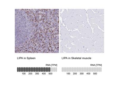 Anti-LIPA Antibody
