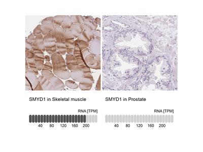 Anti-SMYD1 Antibody