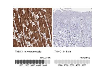 Anti-TNNC1 Antibody