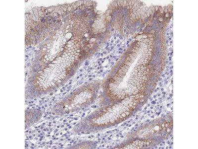 Anti-SSC4D Antibody