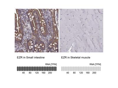 Anti-EZR Antibody