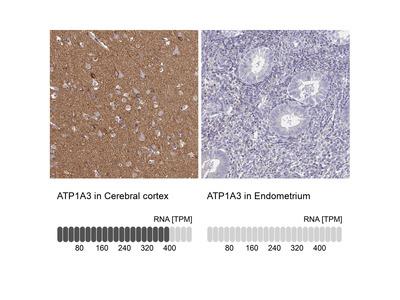 Anti-ATP1A3 Antibody
