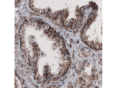 Anti-CS Antibody