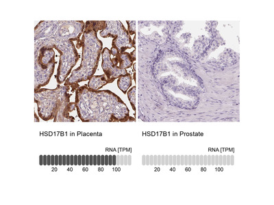 Anti-HSD17B1 Antibody