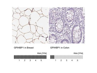 Anti-GPIHBP1 Antibody