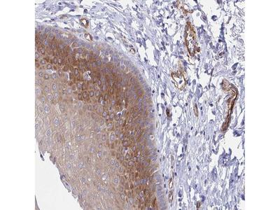 Anti-KLC3 Antibody