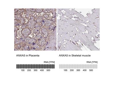 Anti-ANXA5 Antibody