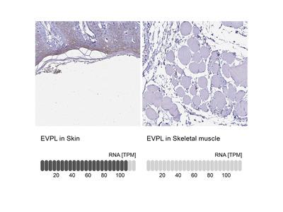Anti-EVPL Antibody