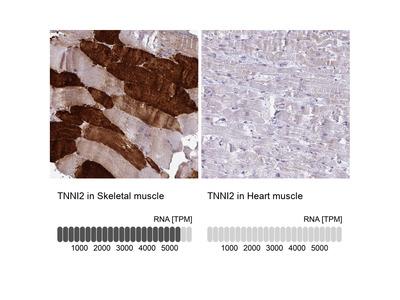 Anti-TNNI2 Antibody