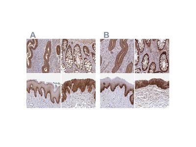 Anti-ITGA2 Antibody