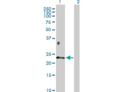 Betacellulin / BTC Antibody