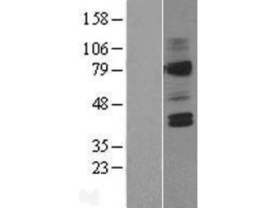 V2 Vasopressin R/AVPR2 Overexpression Lysate