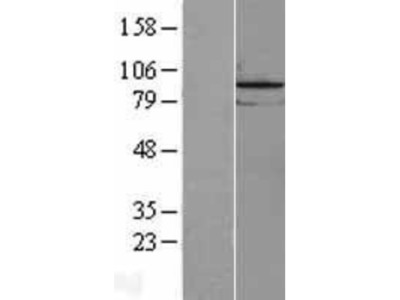 LOC81691 exonuclease NEF-sp Overexpression Lysate (Native)