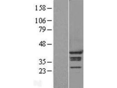 hnRNP A1 Overexpression Lysate