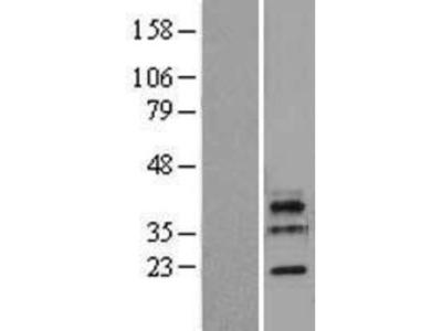 LSM11 Overexpression Lysate