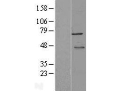 LYRIC Overexpression Lysate