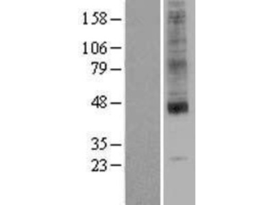 SLC35A1 Overexpression Lysate