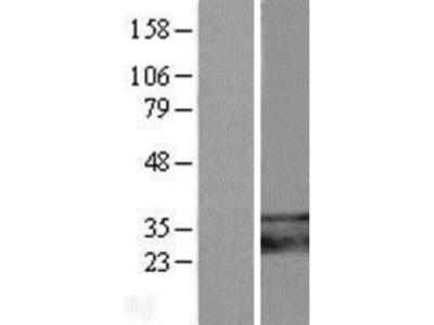 TMEM66 Overexpression Lysate