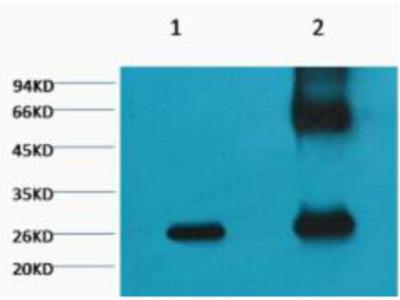 Anti-GFP antibody